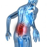 Acupuncture and Low Back Pain